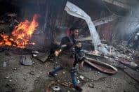 第12回DAYS国際フォトジャーナリズム大賞3位「シリア 傷つけられる子どもたち」photo by アブド・ ドゥマニー(AFP)